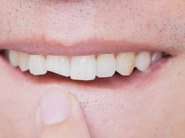 Young man points out broken, cracked tooth