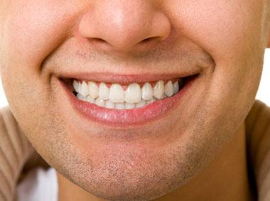 Young man smiles showing missing veneer