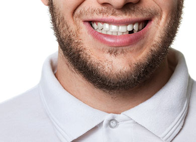 Bearded man shows off a lost tooth