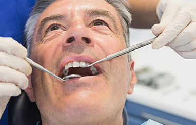 Family dentist in Toronto searches senior's teeth for cavities
