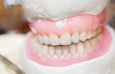 Removable dentures on display in Toronto dental clinic